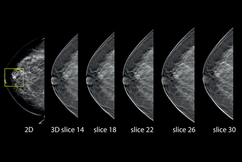 Mammografia digitale 3D con Tomosintesi